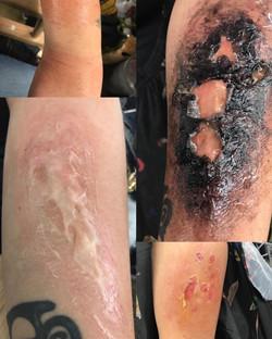 serious burn injury