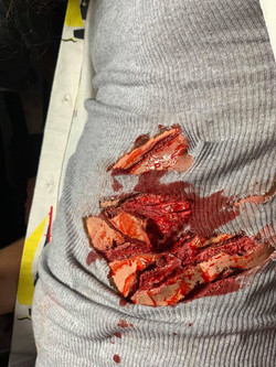 Big Stomach open wound