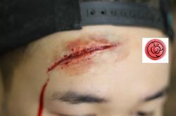 forehead big cut