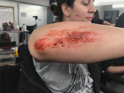 scrap injury