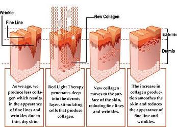 skin-cross-section.jpg