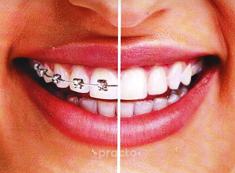 dr-mathesul-mds-invisible-braces-implant