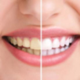 walden-family-dental-teeth-whitening-1.j