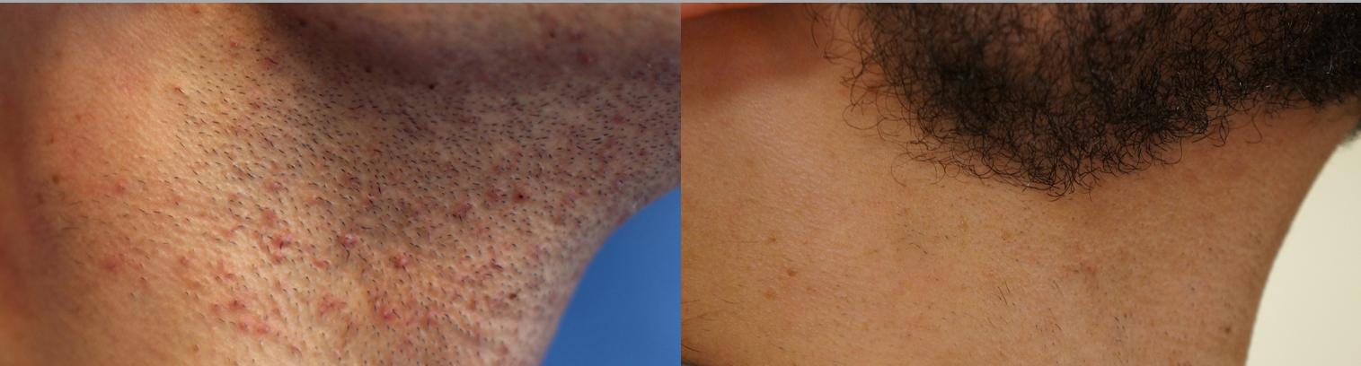 Laser-Hair-Removal-for-Men.jpg
