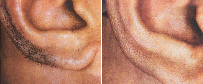 laser4_ringpfeildermatology.jpg