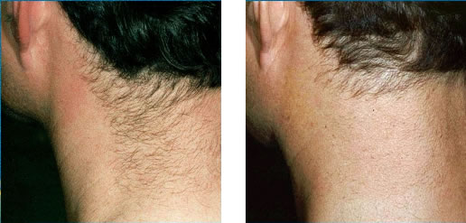 laser_hair_removal-man-neck.jpg