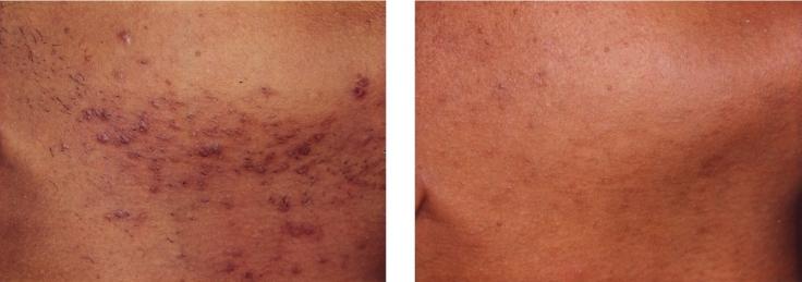 laser-hair-removal-for-black-women-3.jpg