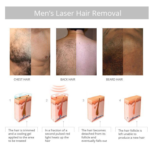 mens_laser_hair_removal11.jpg