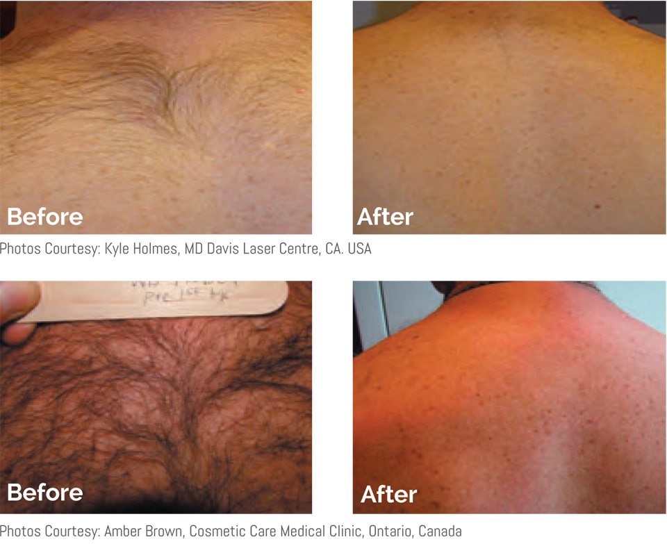 Before-after-mens-laser-hair-removal-back-and-shoulders-by-Exeter-Medical.png