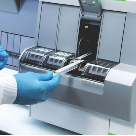 VIDAS®, su aliado en el diagnóstico y pronóstico de pacientes COVID-19