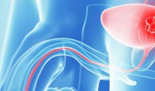 Congresso Europeu de Urologia 2018: atualização Ressonância/laser