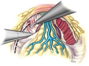 Câncer de próstata em 2016