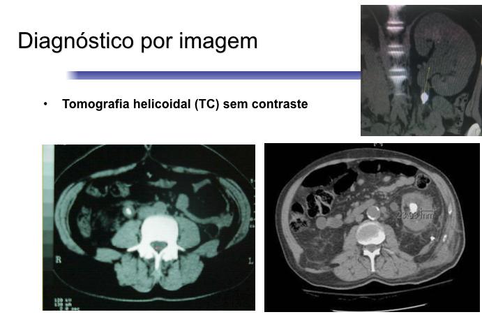 Tomografia para o diagnóstico dos cálculos urinários.