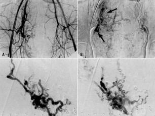 """Embolização Arterial da Próstata => resultados inferiores a antiga """"raspagem"""" da próstata."""
