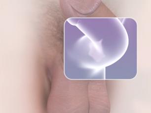 Doença de Peyronie - Tratamento não cirúrgico para tortuosidade peniana?