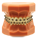 We offer metal braces.