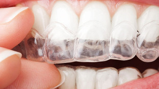 Clear aligners to straighten teeth. Are they the same everywhere?