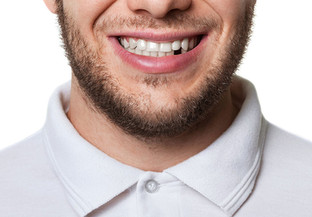 Missing Teeth: Why You Should Replace Them