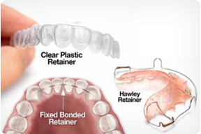 Which Retainer is Right for Me?