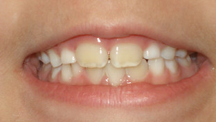 Why is my child's new teeth yellow?