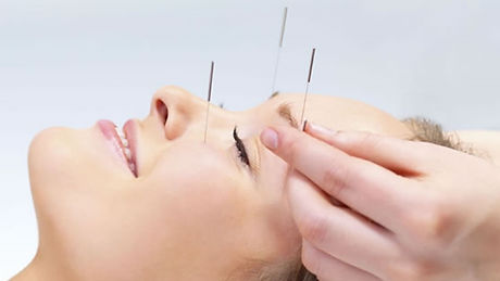 acupuncture stock photo 1 v2.jpg