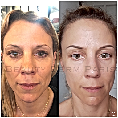 microneedling paris, prix microneedling, prix bb glow, bb glow paris, soins anti age paris, medecine esthétique paris, lifting paris, soin acné paris, vergeture paris, cernes paris, microneedling, beauty derm, bbglow, dmk france, radiofréquence, hydra facial, beautyderm, traitement anti-rides paris, microneedling prix, anti rides paris, beautyderm, rides paris
