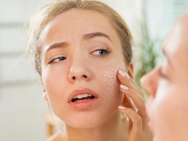La vérité sur la peau sèche et la peau déshydratée.