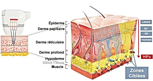 microneedling paris, beauty derm, beautyderm, medecine esthétique paris, lifting paris, vergetures paris, cernes paris, anti-rides paris, anti age paris, microdermabrasion paris, microneedling prix, radiofrequence fractionnee, radiofrequence prix, anti-rides paris, plasma lift, raffermissement peau, dmk france, radiofréquence paris, peeling paris, anti-age paris, hifu paris, hifu, ultraformer, ultherapy, ulthera, ultra sons focalisés paris, lifting paris, bichectomie