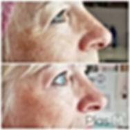 soin liftant anti age plasma, plexr paris, plasma pen, lifting paupieres, plasma pen paris, plasma paris, plasma fibroblast, anti rides paris, plasm, plasm paris, plas m, taches, traitement anti-rides paris, fibroblast paris