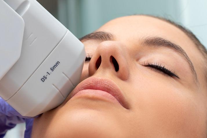 Extreme close up of HIFU treatment on fe