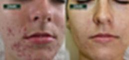 acné enzyme masque paris, dmk france, anti age paris, melanotech dmk treatment, dmk paris