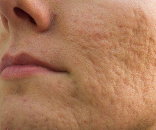 w-cicatrice-acnee