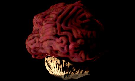 9_Cerebroide1.png