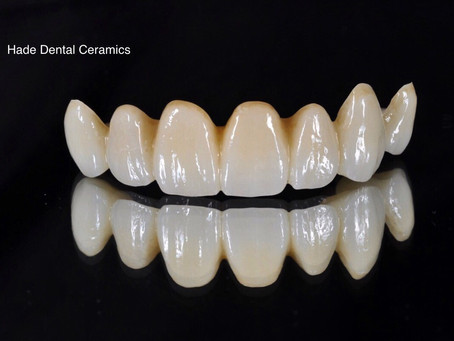 Hade Dental Ceramics and Brookfield Road Dental Partners In Delivering High Quality Dental Care