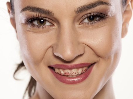 Stained Teeth Affecting Your Confidence?