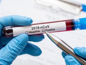 9 cosas positivas del Coronavirus