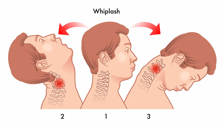 Life Force Chiropractic, whiplash treatment