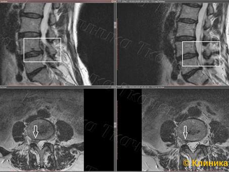 Резорбция или уменьшение межпозвонковой грыжи и секвестра за 4 месяца