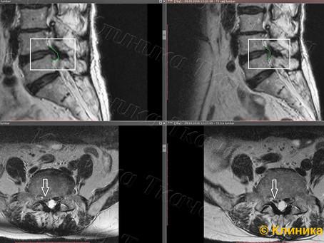 Резорбция грыжи у 76-летней пациентки за 2 месяца.