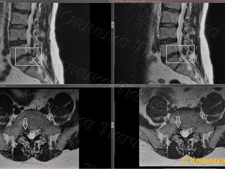 Резорбция межпозвонковой грыжи за 3 месяца после лечения