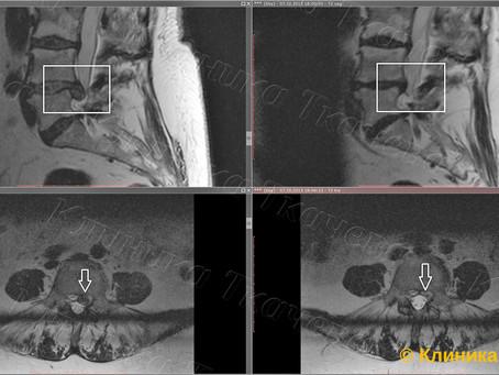 Архивные МРТ снимки резорбции с 2012-13.