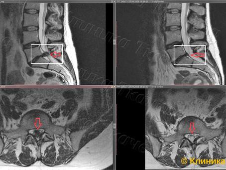 Полный стеноз позвоночного канала и полная резорбция грыжи диска