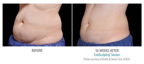 CoolSculpting Before & After | Female Stomach