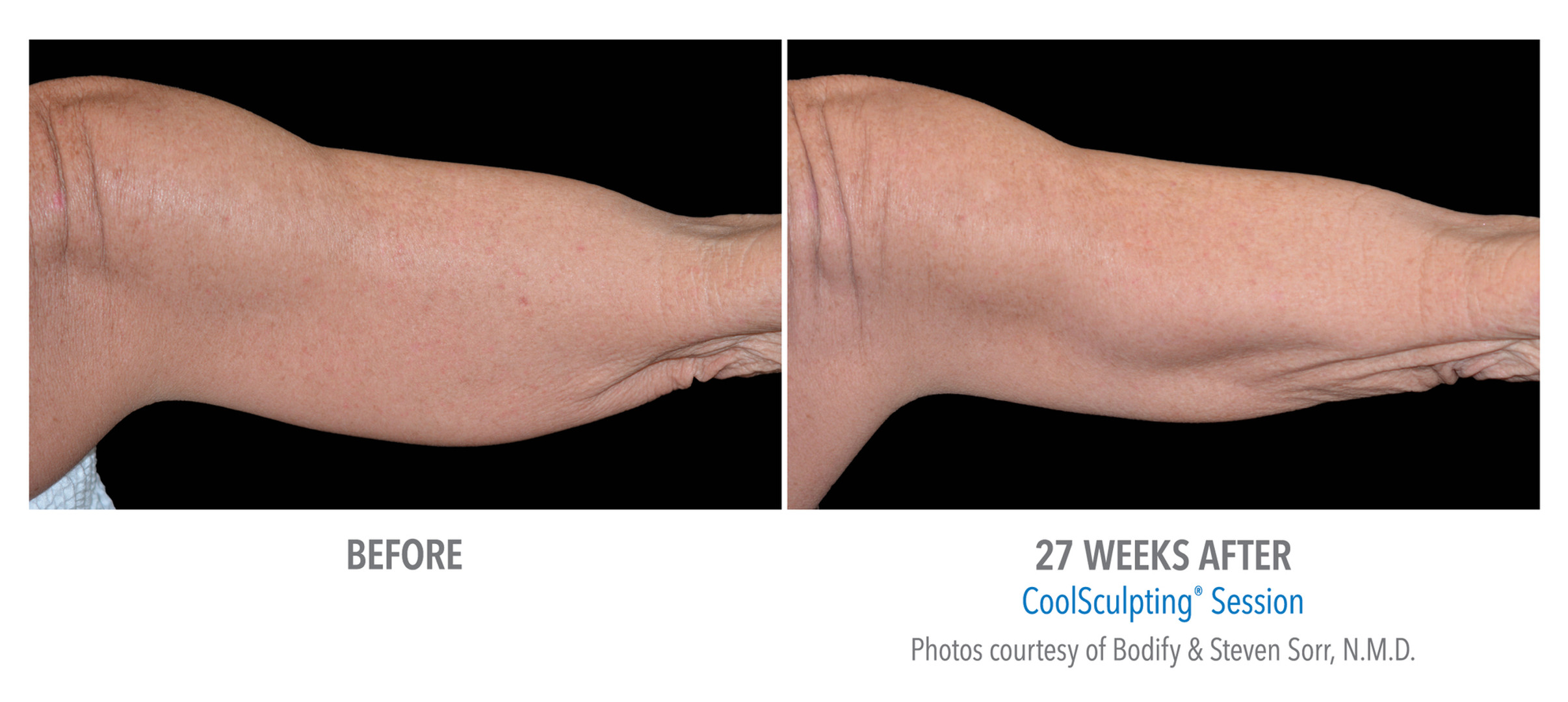 CoolSculpting Before & After | Female: Arms