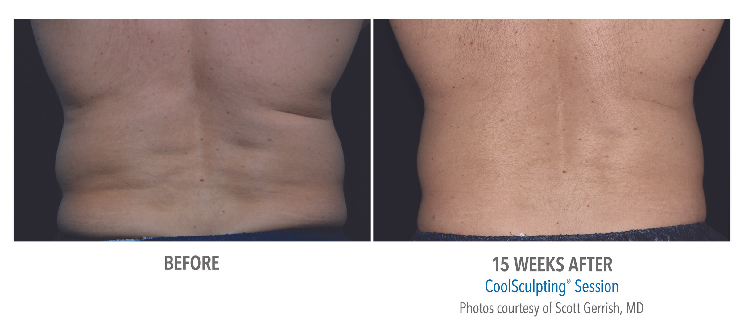 CoolSculpting Before & After | Male: Flank Treatment