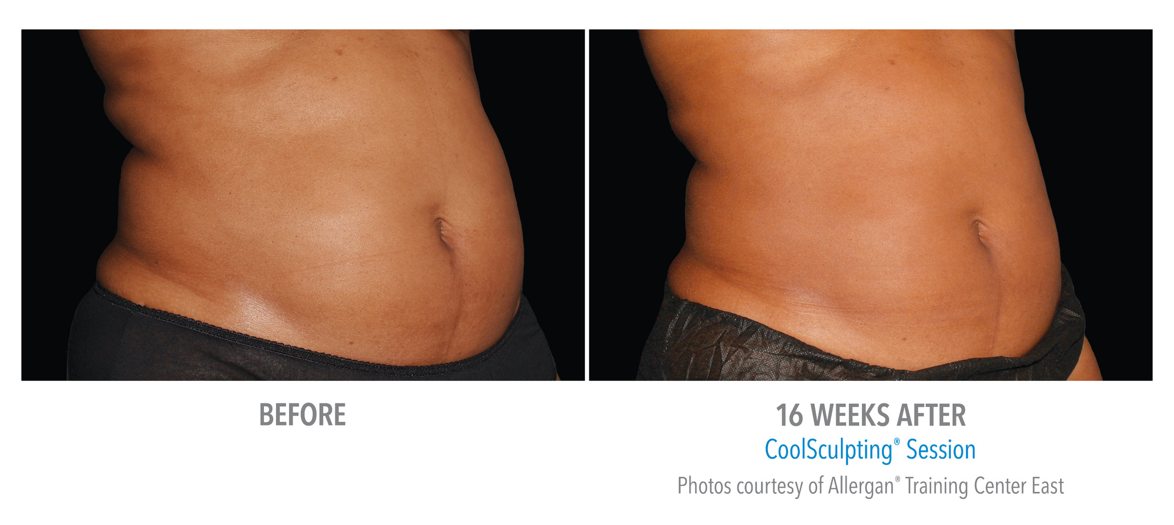 CoolSculpting Before & After: Male: Abdomen