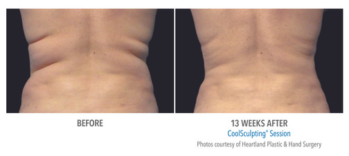 CoolSculpting Before & After | Women: Flank Treatment