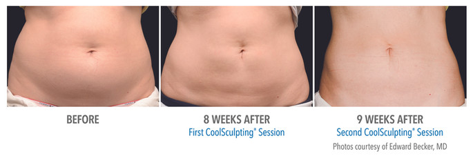 CoolSculpting Before & After | Female Abdomen