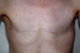 Double (Bilateral) Mastectomy Mr Sunil Jassal