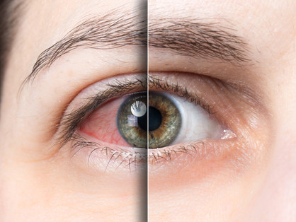 Brits have 'No Eyedea' about common eye condition despite suffering with many symptoms